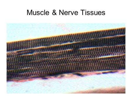 Muscle & Nerve Tissues. skeletal muscle, 10X, voluntary, striated attached to bones.
