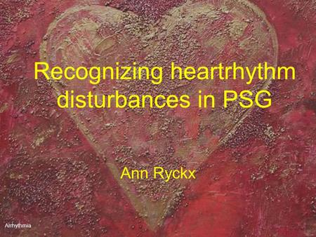 Arrhythmia Recognizing heartrhythm disturbances in PSG Ann Ryckx.