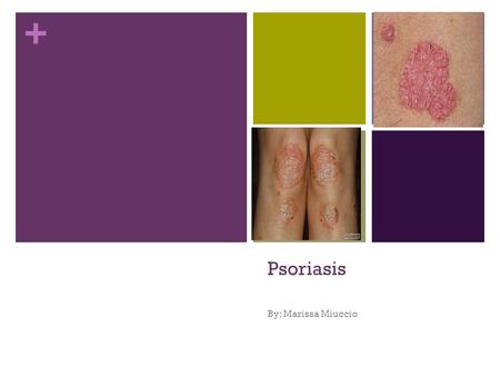 + Psoriasis By: Marissa Miuccio. + Definition What is it? Psoriasis is a common skin disease that affects the life cycle of skin cells. Psoriasis causes.