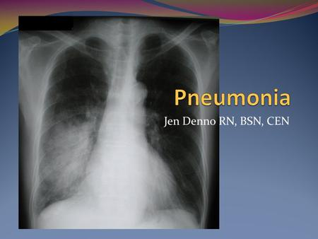Jen Denno RN, BSN, CEN. Pneumonia Vaccination Percent of adults 65 years and over who had ever received a pneumococcal vaccination: 59% Health Care Use.