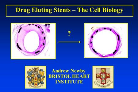 Drug Eluting Stents – The Cell Biology Andrew Newby BRISTOL HEART INSTITUTE ?