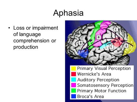 Aphasia Loss or impairment of language comprehension or production.