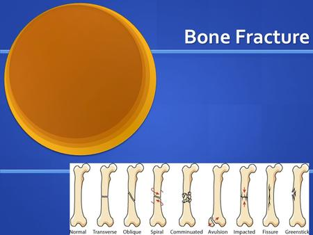 Bone Fracture. Recall: Three types of Stress: Three types of Stress: Tension Tension Compression Compression Shear Shear.