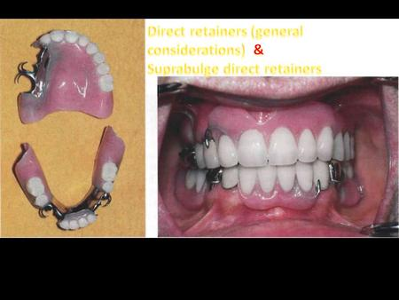 Direct retainers (general considerations)  &