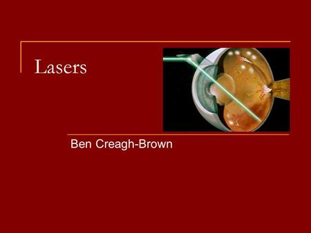 Lasers Ben Creagh-Brown. Beware Pay attention – there are MCQs at the end!