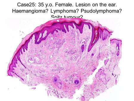 Case25: 35 y.o. Female. Lesion on the ear. Haemangioma? Lymphoma? Psudolymphoma? Spitz tumour?