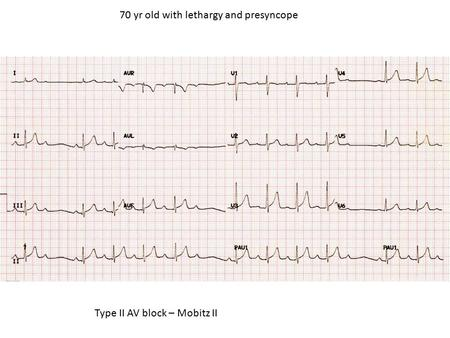70 yr old with lethargy and presyncope