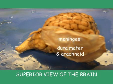 Meninges: dura mater & arachnoid SUPERIOR VIEW OF THE BRAIN.
