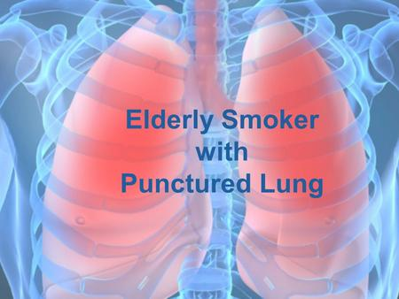 Elderly Smoker with Punctured Lung. Patient Bio  Brad  63 year old male  Smokes two or more packs of cigarettes a day  Already experiences lung dysfunction.