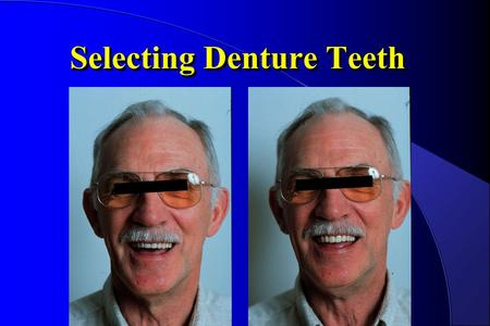 Selecting Denture Teeth. Place reference marks on the occlusion rims to aid in tooth selection and placement.