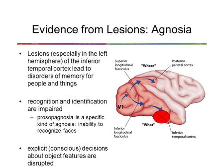 Evidence from Lesions: Agnosia Lesions (especially in the left hemisphere) of the inferior temporal cortex lead to disorders of memory for people and things.