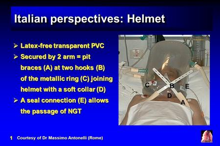 11 Italian perspectives: Helmet Courtesy of Dr Massimo Antonelli (Rome)  Latex-free transparent PVC  Secured by 2 arm = pit braces (A) at two hooks (B)
