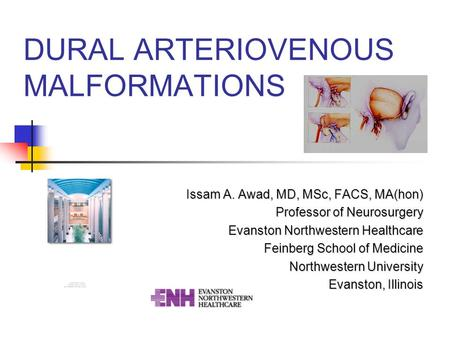 DURAL ARTERIOVENOUS MALFORMATIONS Issam A. Awad, MD, MSc, FACS, MA(hon) Professor of Neurosurgery Evanston Northwestern Healthcare Feinberg School of Medicine.