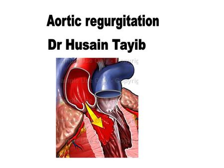 Aortic regurgitation Dr Husain Tayib.