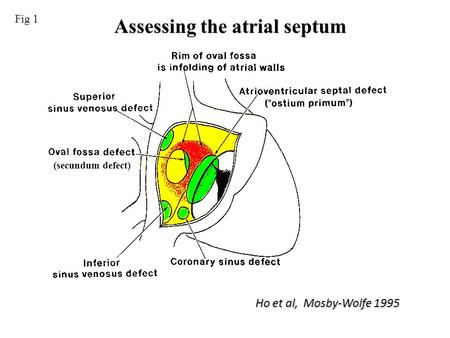 Assessing the atrial septum