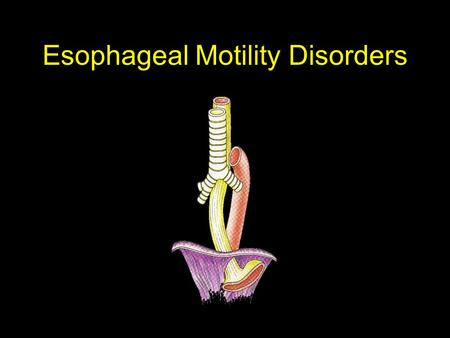 Esophageal Motility Disorders. Esophageal Motility Dz Esophageal Disorders Motility Anatomic & Structural Reflux Infectious Neoplastic Miscellaneous.