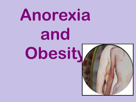 Anorexia and Obesity. Anorexia A person with anorexia has an intense fear of gaining weight. Someone with anorexia thinks about food a lot and limits.