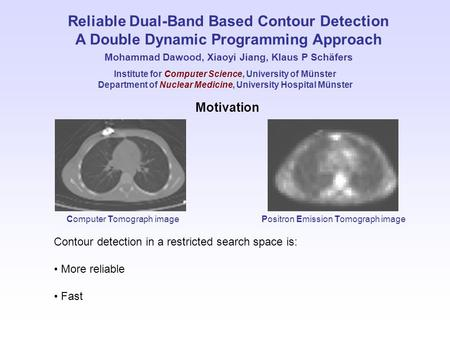 Reliable Dual-Band Based Contour Detection A Double Dynamic Programming Approach Mohammad Dawood, Xiaoyi Jiang, Klaus P Schäfers Motivation Contour detection.