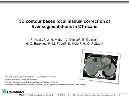 27.06.20093D contour based local manual correction of liver segmentations1Institute for Medical Image Computing 3D contour based local manual correction.