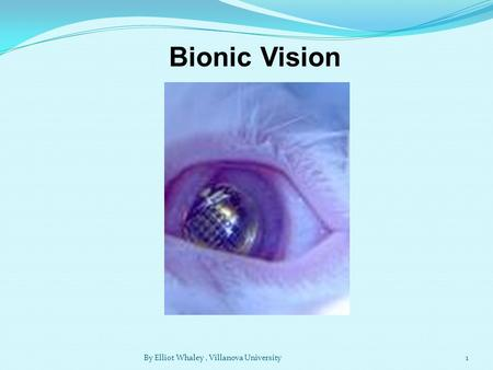 Bionic Vision 1By Elliot Whaley, Villanova University.