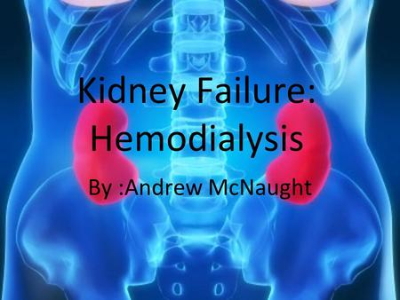 Kidney Failure: Hemodialysis By :Andrew McNaught.