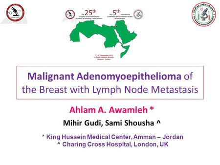 Malignant Adenomyoepithelioma of the Breast with Lymph Node Metastasis Ahlam A. Awamleh * Mihir Gudi, Sami Shousha ^ * King Hussein Medical Center, Amman.