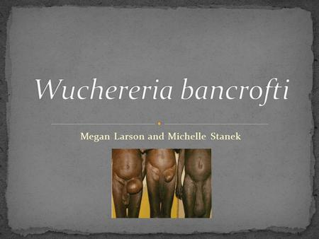 Megan Larson and Michelle Stanek. W. Bancrofti causes lymphatic filariasis This is also known as elephantiasis It affects over 120 million people worldwide.