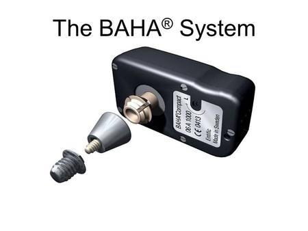 The BAHA ® System. Types of hearing loss the BAHA ® System can help Unilateral sensori-neural hearing loss/Single Sided Deafness –Due to examples.