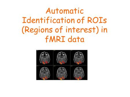 Automatic Identification of ROIs (Regions of interest) in fMRI data.