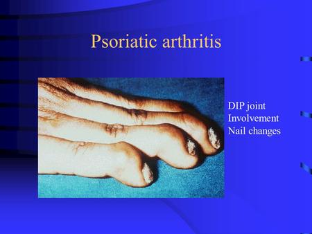 Psoriatic arthritis DIP joint Involvement Nail changes.