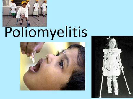 Poliomyelitis. Polio is a highly infectious viral disease.