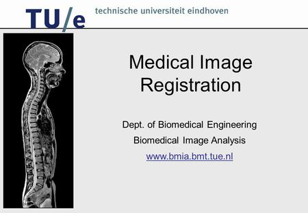Medical Image Registration Dept. of Biomedical Engineering Biomedical Image Analysis www.bmia.bmt.tue.nl.