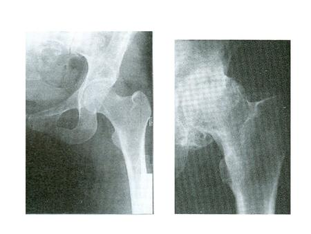 ARTHROSCOPIC FEATURES Chondromalacia Advanced chondromalacia Cartilage eburnation.