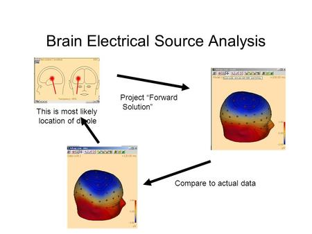 "Brain Electrical Source Analysis This is most likely location of dipole Project ""Forward Solution"" Compare to actual data."
