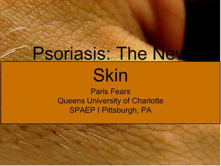 Psoriasis: The New Skin Paris Fears Queens University of Charlotte SPAEP I Pittsburgh, PA.