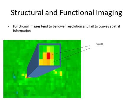 Structural and Functional Imaging Functional images tend to be lower resolution and fail to convey spatial information Pixels.