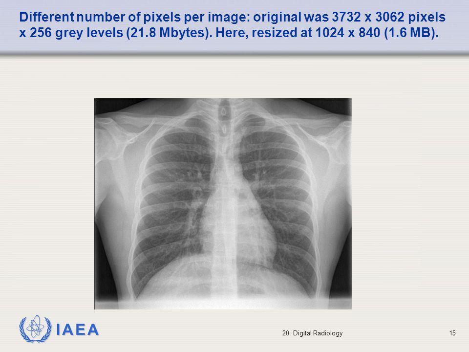 IAEA 20: Digital Radiology16 Different number of pixels per image: original was 3732 x 3062 pixels x 256 grey levels (21.8 Mbytes).