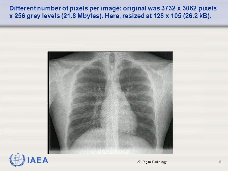 IAEA 20: Digital Radiology17 Different number of pixels per image: original was 3732 x 3062 pixels x 256 grey levels (21.8 Mbytes).