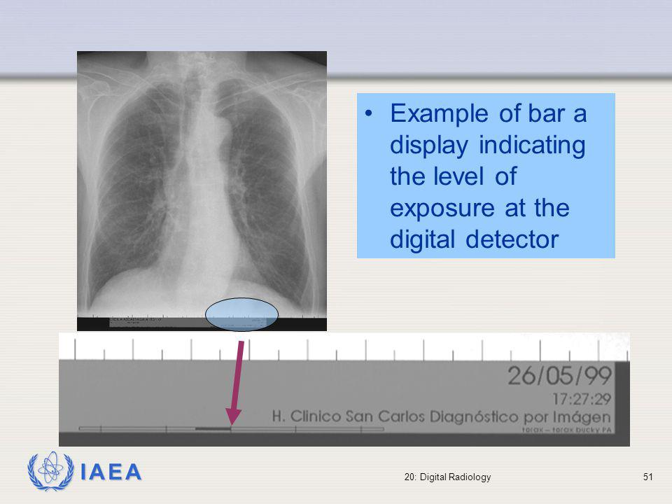 IAEA 20: Digital Radiology52 Display of patient dose The radiographic and dose data from the DICOM header can be used to auditing patient doses If radiographic techniques (kV, mA, time, distances, filters, field size, etc.) and dose data (entrance dose, dose area product, etc.) are part of the DICOM header, retrospective analysis of patient doses can be performed and assessed against the image quality.