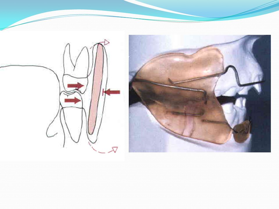 A buccal shield holds the cheek a way from the dentition and (B) facilitates posterior dental expansion b y disrupting the tongue-cheek equilibrium.