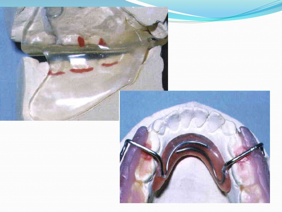 Active tooth borne Expansion screws or springs During functional appliance treatment, every millimeter of incisor tipping (camouflage) is a millimeter of potential skeletal correction that has been lost.