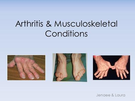Arthritis & Musculoskeletal Conditions Jenaee & Laura.