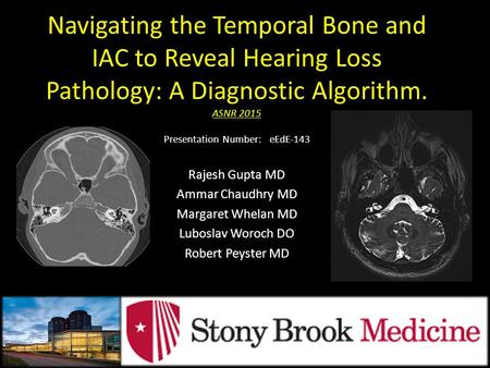 Navigating the Temporal Bone and IAC to Reveal Hearing Loss Pathology: A Diagnostic Algorithm. ASNR 2015 Presentation Number:   eEdE-143 Rajesh Gupta.