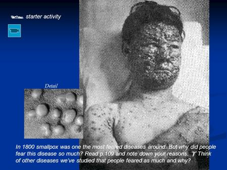  starter activity Detail In 1800 smallpox was one the most feared diseases around. But why did people fear this disease so much? Read p.109 and note down.