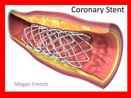 Coronary Stent Megan French. What is a Stent A small, mesh-like device made of metal Acts as a support or scaffold, in keeping the vessel open Stent helps.