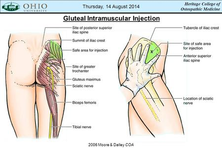 Heritage College of Osteopathic Medicine Gluteal Intramuscular Injection 2006 Moore & Dalley COA Thursday, 14 August 2014.