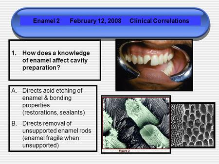 1.How does a knowledge of enamel affect cavity preparation? Enamel 2 February 12, 2008 Clinical Correlations A.Directs acid etching of enamel & bonding.