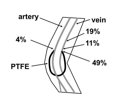 19% 11% 4% 49% vein PTFE artery. Experimental Characterization of Transitional Unsteady Flow Inside a Graft-to-Vein Junction Nurullah Arslan Mechanical.