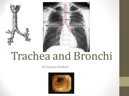 Trachea and Bronchi Dr.Hassan Shaibah. Tracheobronchial anatomy 3 Tracheal Displacement Due to Goiter Images downloaded from From www.vh.org.