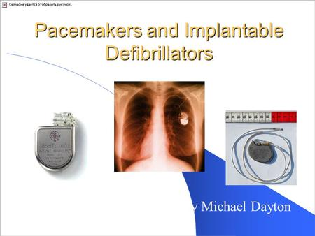 Pacemakers and Implantable Defibrillators By Michael Dayton.